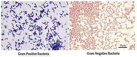 what color is gram positive gram staining principle procedure interpretation and