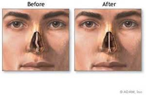 op le deviated nasal septum blocked nose plastic surgery