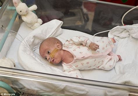 twins born at 25 weeks baby girl born premature at just 25 weeks weighing less