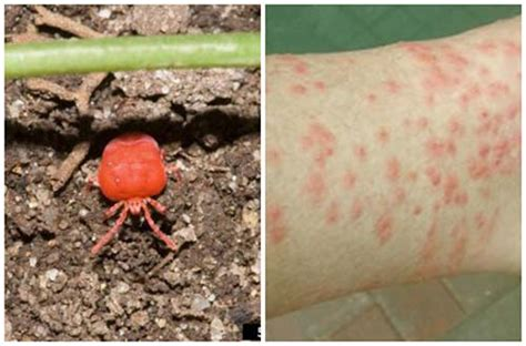 How To Get Rid Of Backyard Bugs by How To Get Rid Of Chigger Bugs From Your Garden Iseeidoimake