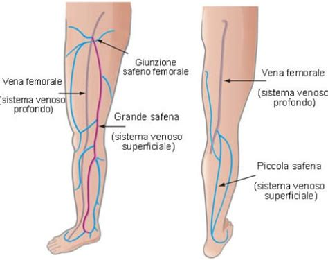 vene varicose interne vein clinic