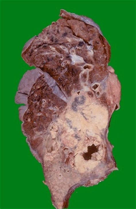 carcinoma portio pulmonary pathology