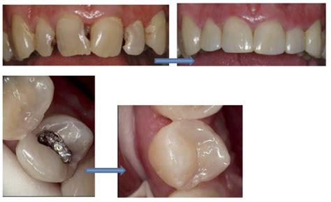 Buat Pemutihan Gigi by Perlu Bayar Untuk Senyuman Menawan Dr Anis Ezrina The