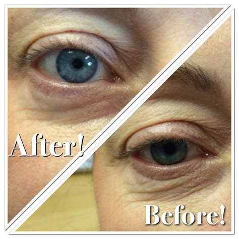 Collagen Eye Mask 13 best images about before and afters on