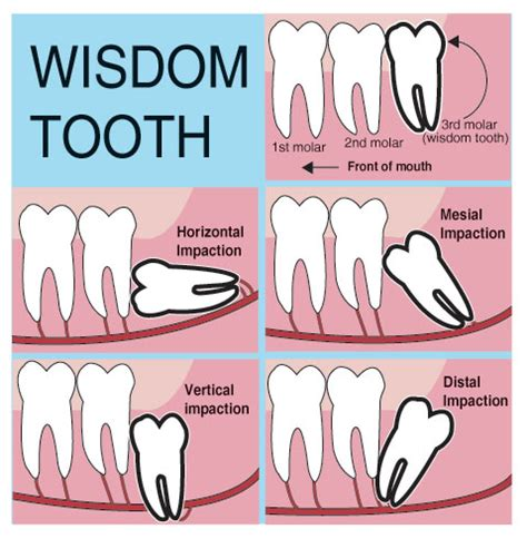 some wisdom about wisdom teeth kidds place