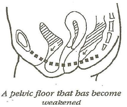 pevic floor exercises to reduce coccyx diastasis recti an overview boot c