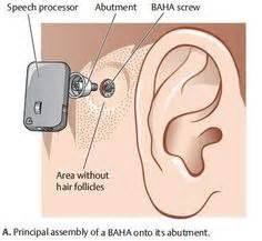 Getting A Perm With A Baba Hearing Implant Can I | 1000 images about itinerant teaching dhoh on pinterest