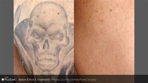 does laser tattoo removal leave a scar laser ink picosure laser removal specialists