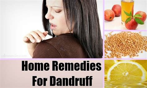 32 best home remedies for dandruff that work