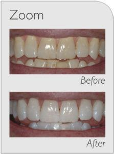 zoom whitening review  cost side