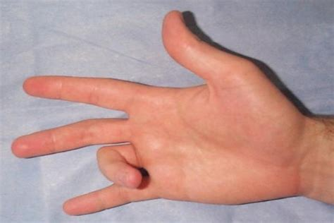 Bony Knobs On Finger Joints by Symptoms Of Osteoarthritis How To Identify Symptoms Of