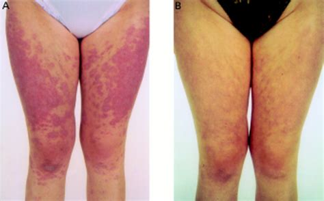 lupus skin rash on legs