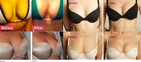 Breast Lift breastlift before and after r x medspa