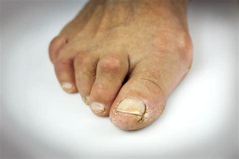 Toenail Deformity Pictures