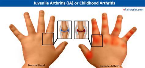 arthritis symptoms juvenile arthritis ja or childhood arthritis symptoms treatment nsaids pt
