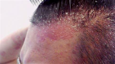 dermatitis seborreica tratamiento cuero cabelludo dermat 243 logo especialista en dermatitis seborreica madrid