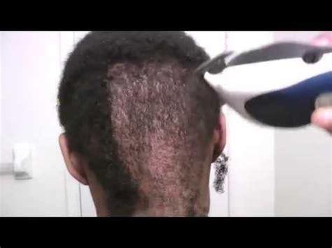 how to cut alepecia areata hair shaving my head alopecia areata 2013 3 months post big