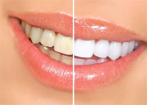 come sbiancare i denti in casa come sbiancare i denti a casa
