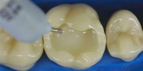Bor Gigi si dokter tunjukan cara tambal gigi keren seperti seni
