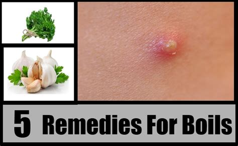 5 herbal remedies for boils treatments cure