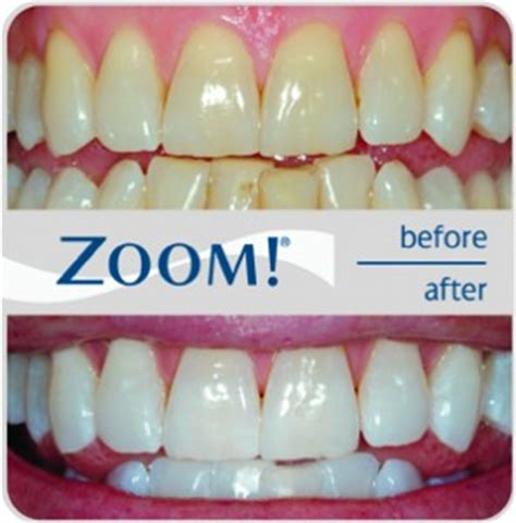 osorio dental take home teeth bleaching trays