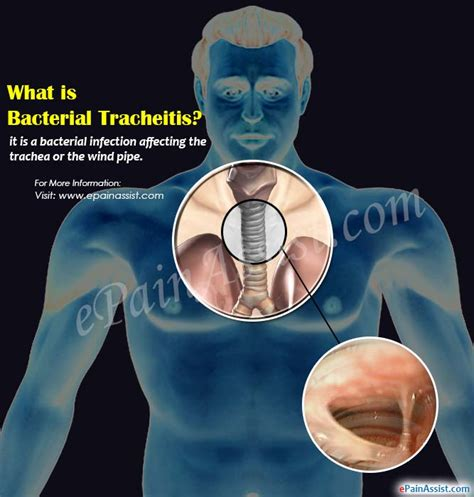what is st known for what is bacterial tracheitis its causes symptoms