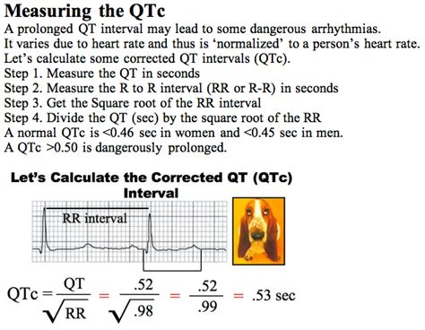 calculator qtc qt interval corrected measurement