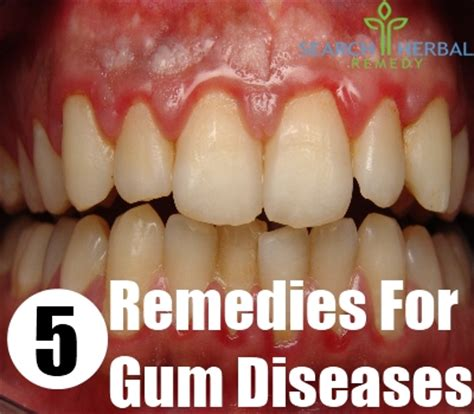 gum pockets home treatment 28 images laser dentistry