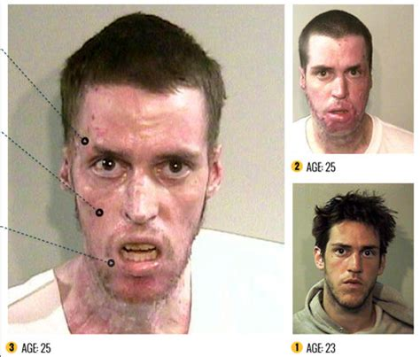 Heroin Detox And Acne by Faces Of Meth The Horrifying Reality Of This