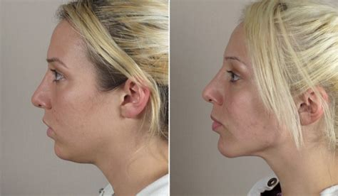 what should i expect when getting a chin length short wavy bob chin augmentation new jersey parker center for plastic