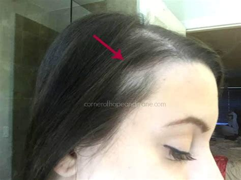 best hairstyles dor traction alopecia can with bald spots get braids this is the bald spot as