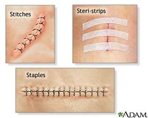 how to take care of stitches after c section degradable sutures by cody siroka openwetware