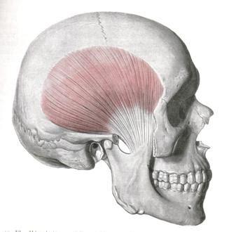 imagenes de huesos temporales s 205 ndrome del m 218 sculo temporal smt