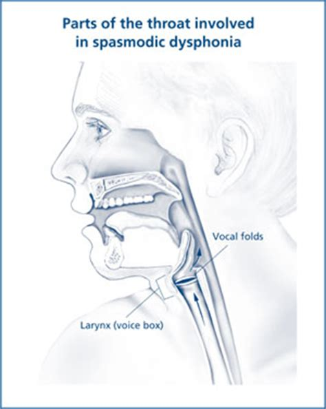 parts therapy spasmodic dysphonia nidcd