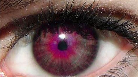 Imagenes Ojos Raros | los cinco colores de ojos m 225 s raros abc es