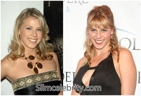 celebrity plastic surgery 24 before after pictures 2015 celebrity plastic surgery 24 before after pictures 2015