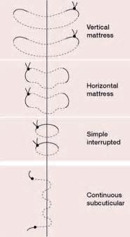 horizontal mattress sutures definition of horizontal
