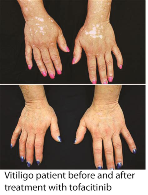 Tofacitinib Also Search For Tofacitinib Treatment For Vitiligo