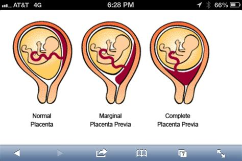 c section with low lying placenta previa pregnancy pinterest