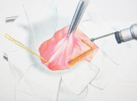 dolori interni all ano anatomia canale anale e muscoli sfinteri