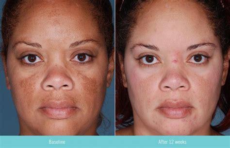 clinique even better erfahrung hydroquinone advanced skin care pigment
