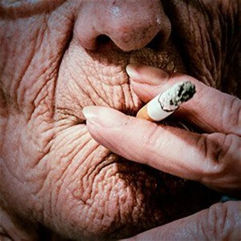 is smoking bad for your skin important skin health info