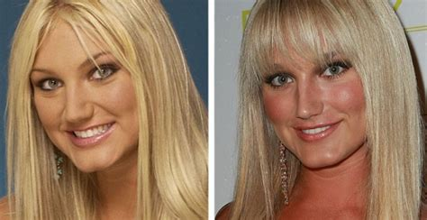 brooke hogan plastic surgery   breast implants nose job