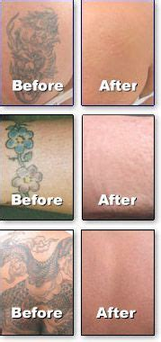 best tattoo removal los angeles 10 best images about removal before and after on