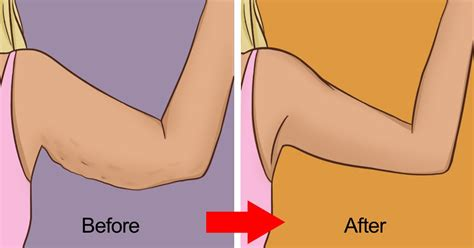 12 Ways To Tighten Your Stomach After A Baby by 10 Ways To Tighten Skin Including Skin On Arms