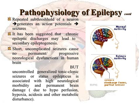 do led lights cause epileptic seizures dr ajays homeopathy homeopathy approach to epilepsy