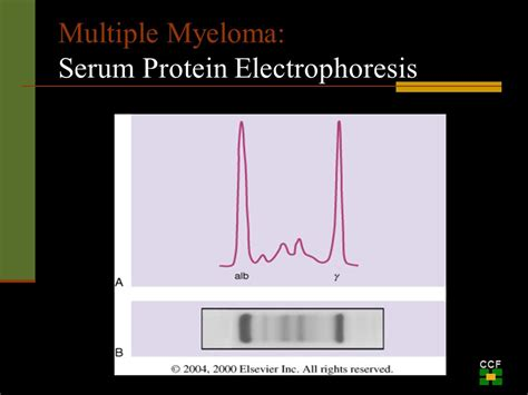 m protein and myeloma myeloma an overview of the disease and it s