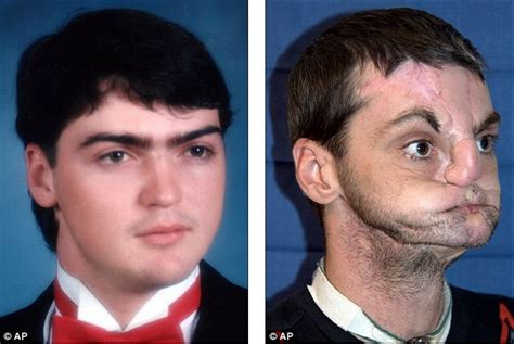 Richard Norris by 17 Years Ago A Shotgun Blew Half Of This Man S Face Away