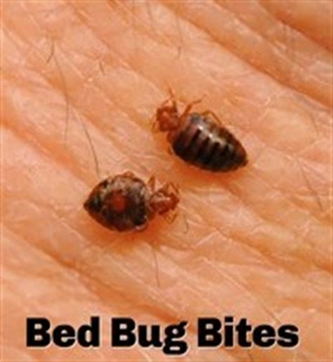 how to relieve bed bug bites how to treat bed bug bites nps pest control