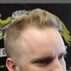 haircuts for balding crown inspiring hairstyles for balding crown ideas before